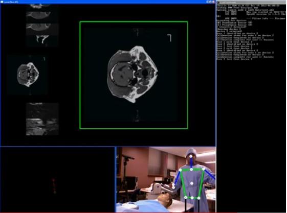 Une Kinect en salle d'opération