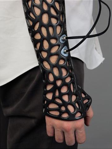 Un plâtre à ultrasons, imprimé en 3D